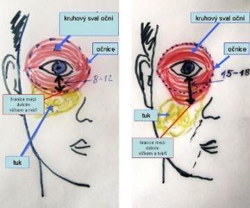 stárnutí obličeje a důvod, proč vznikají kruhy pod očima