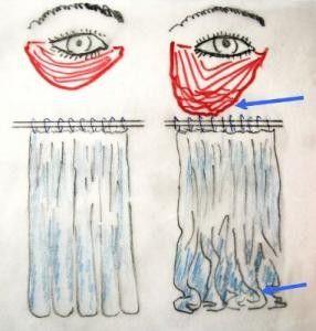 pytle pod očima v důsledku povolení kruhového svalu