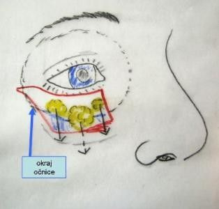 metoda odstranění kruhů pod očima