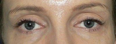 stárnutí očí