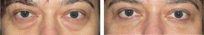 pacientka před a po