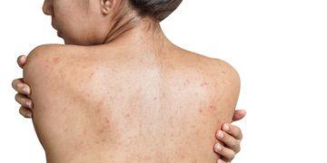 Poradíme vám, jak se zbavit akné na zádech