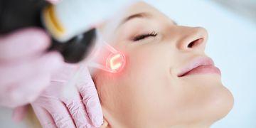 Lasery v otázkách a odpovědích z praxe Body kliniky
