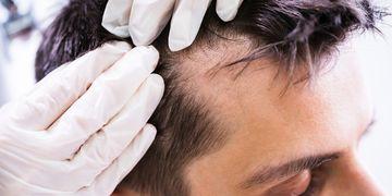 Lze zastavit padání vlasů a obnovit jejich růst? ANO!