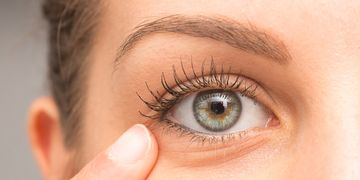 Nevíte jak odstranit nehezké kruhy pod očima?