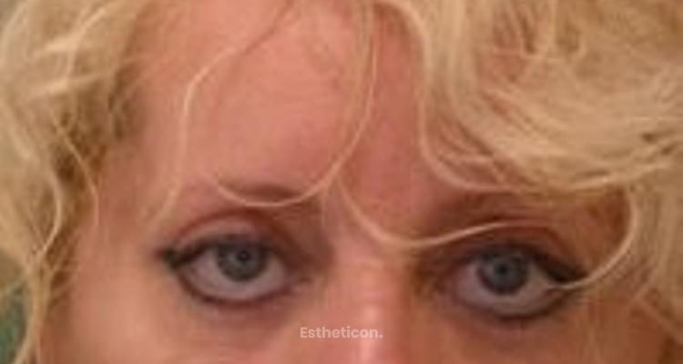 Operace očních víček - fotostory