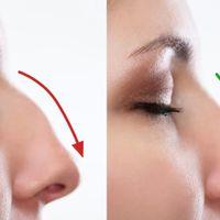 Otevřená operace nosu: Je pro vás vhodná?