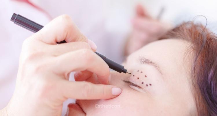 Pooperační péče má velký vliv na konečný výsledek operace očních víček