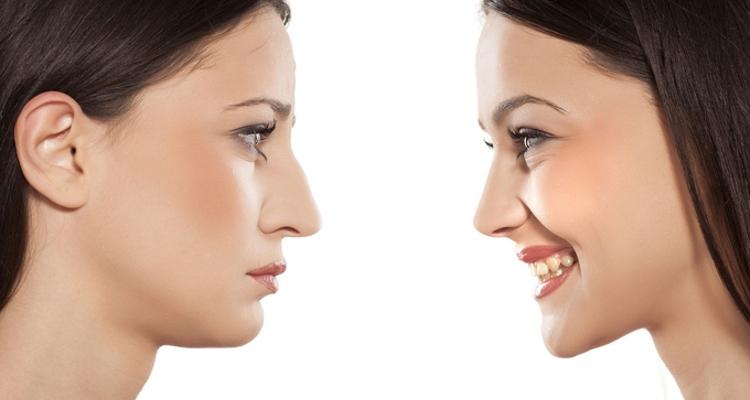 Pooperační péče po operaci nosu (rhinoplastice)