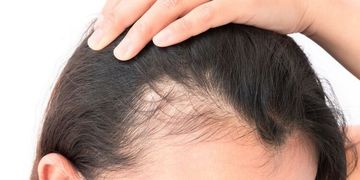 Rozdíly u transplantace vlasů strip technikou a FUE metodami