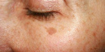 Stařecké pigmentové skvrny - Jsou opravdu čistě projevem stáří?