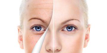 Trápí vás pigmentové skvrny? Řešením je laserové odstranění