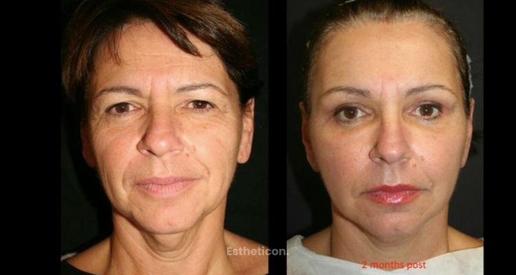 Vyhlaďte si obličej pomocí vlastního tuku metodami Seffi a Micro Seffi