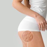 Zeštíhlení bez skalpelu? Neinvazivní metoda liposukce, která funguje