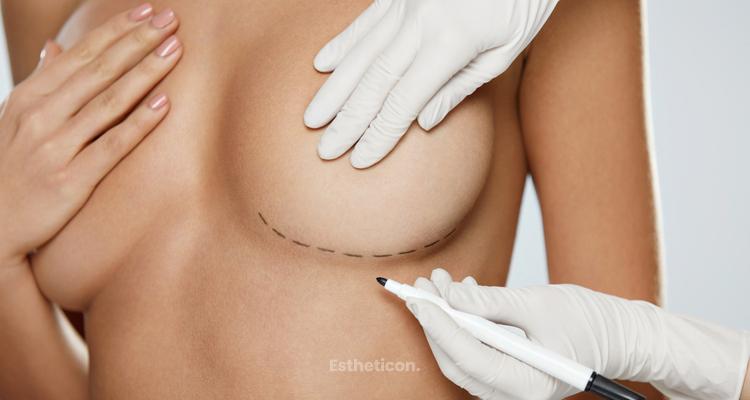 Ergonomický implantát pro přirozeně krásná prsa