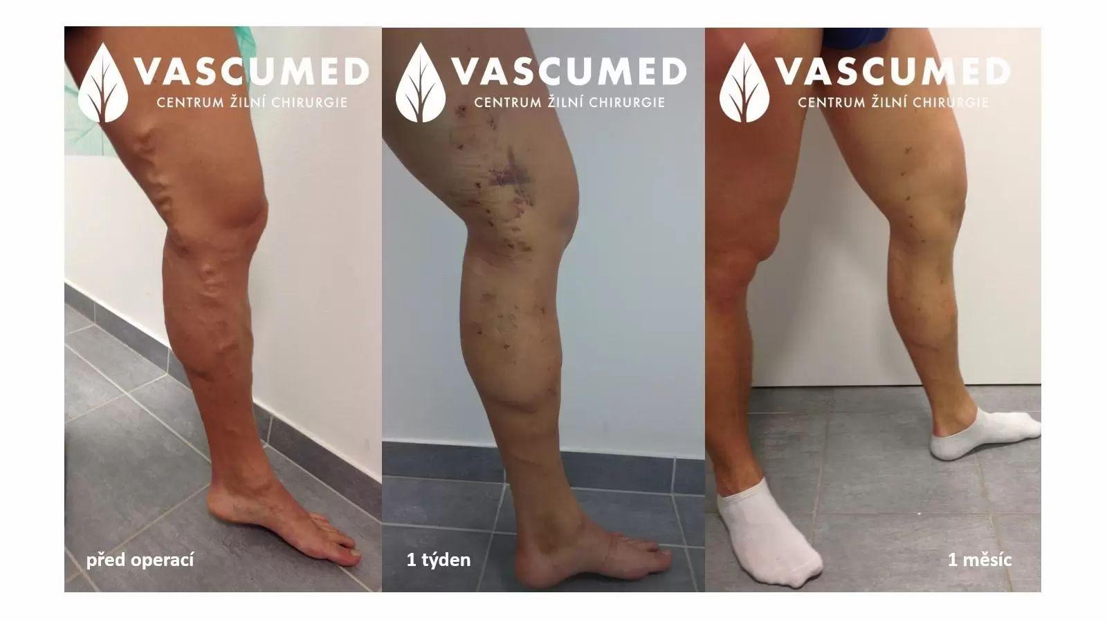 Léčba varixů, fotky před a po odstranění křečových žil operací