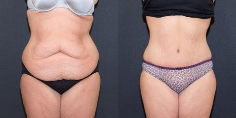phoca thumb l tummy tuck before after 1