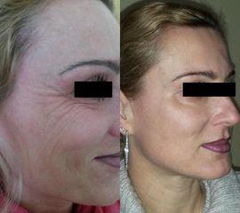 Upravený botox PŘED