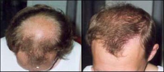 vlasy33