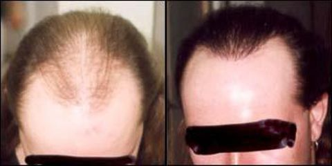 vlasy45
