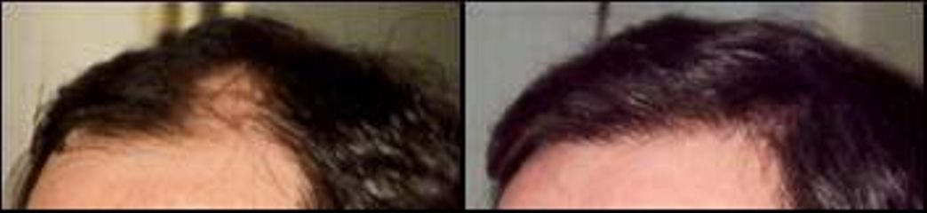 vlasy23