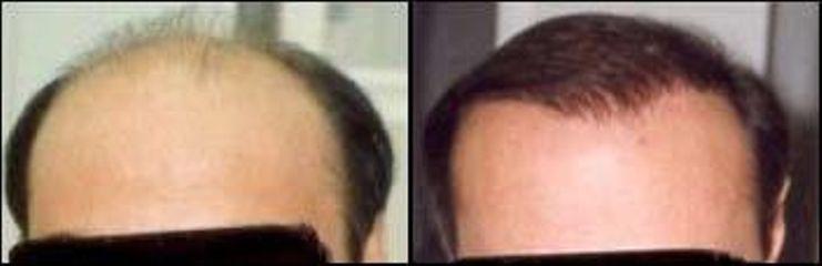 vlasy41
