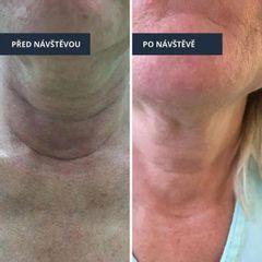 Nová peelingová metoda pro omlazení a zpevnění kůže