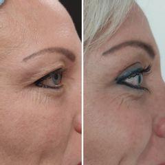 Operace očních víček (Blefaroplastika) - MUDr. Zuzana Vykutilová