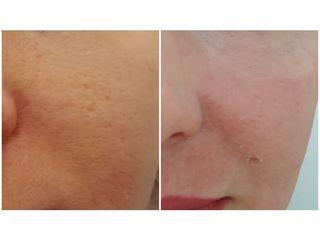 Laserová léčba akné - MUDr. Zuzana Vykutilová