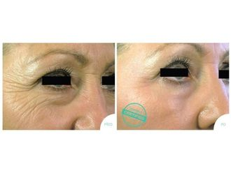 Odstranění vrásek pomocí botulotoxinu - 698769