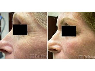 Odstranění vrásek pomocí botulotoxinu - 698770
