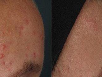 Léčba akné - 732773