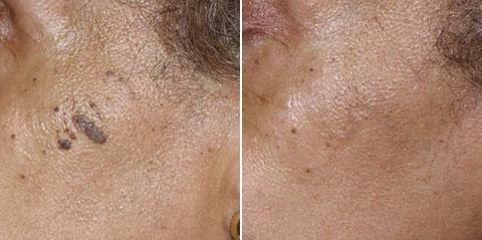 Léčba celulitidy - Cellu M6