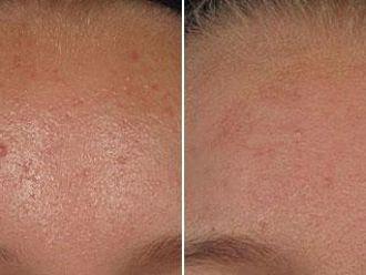 Léčba akné - 732814