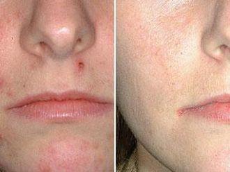 Léčba akné - 732846