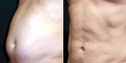 liposukce laser 4