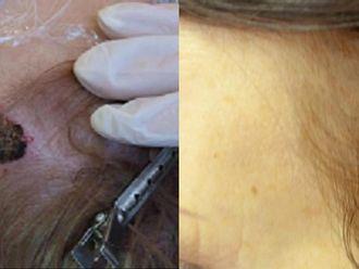Laserová dermatologie - 722898