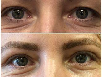 Operace očních víček - 796331