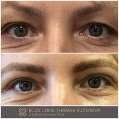 Operace očních víček - MUDr. Lucie Thomas Kučerová