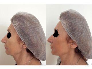 Juvederm - vyhlazení vrásek injekční výplní