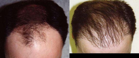 vlas1