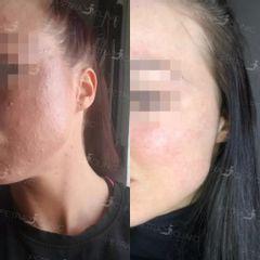 Léčba akné a jizev po akné