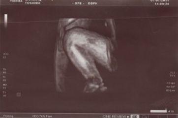 4D ultrazvuk 2