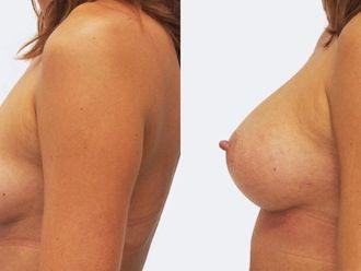 Zvětšení prsou - 786901