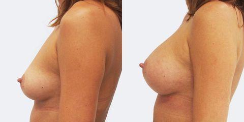 Zvětšení prsou - Prim. MUDr. Pavel Horyna - MEDICOM Clinic