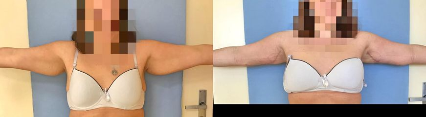 Chirurgické odstranění nadbytků paží