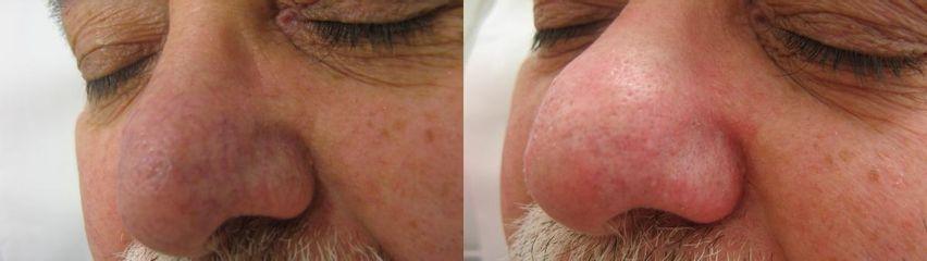 Odstranění žilek na nose laserem