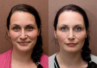Odstranění kruhů pod očima + plazmaterapie + mezoterapie