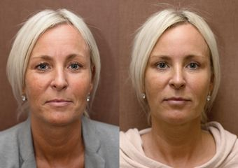 ANTIAGING PRED PO 003