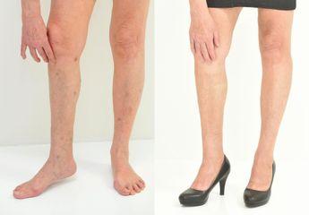 sklad nohy 1